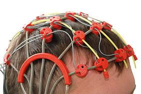 tampa epilepsy disability benefits